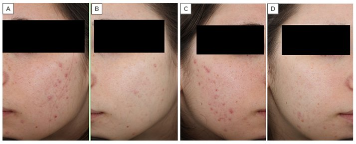 Clinical Cases In Dermatology Modern Management Of Acne Actinic Keratosis And Atopic Dermatitis European Medical Journal